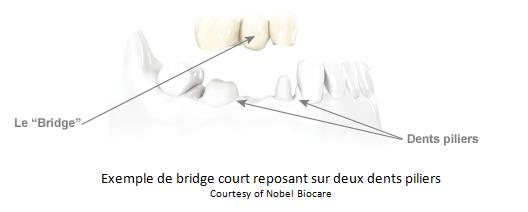 image-bridges