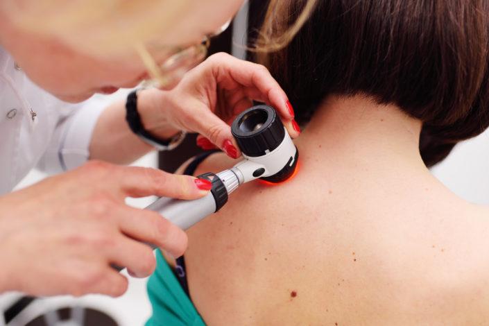 dépistage cancer peau