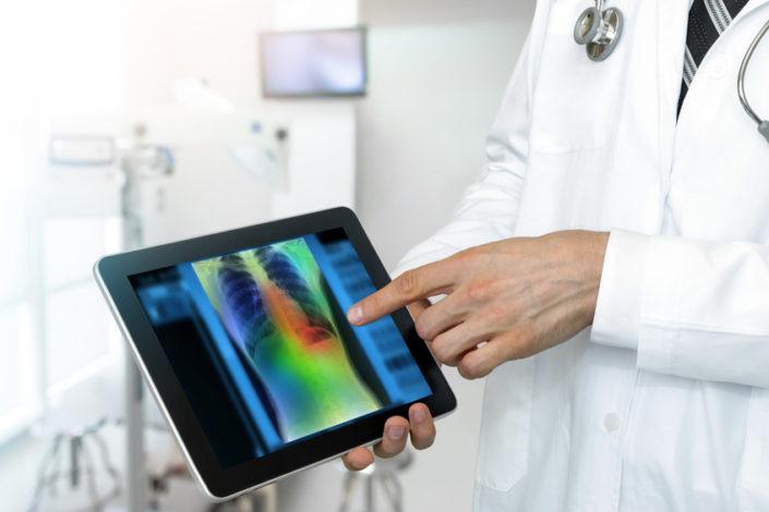 Google lance un algorithme qui détecte le cancer du poumon !